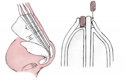 Ринопластика с изменением наружной структуры носа .