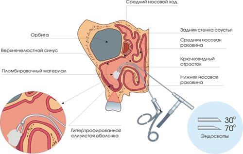 Операции при хроническом синусите (гайморите).